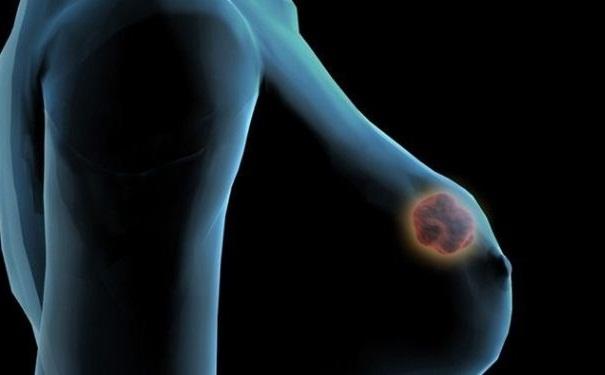 乳腺增生需注意哪些饮食禁忌